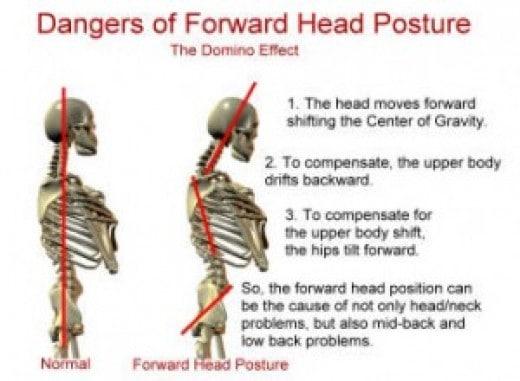 Dangers of forward head posture