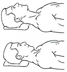 Suboccipital Stretch